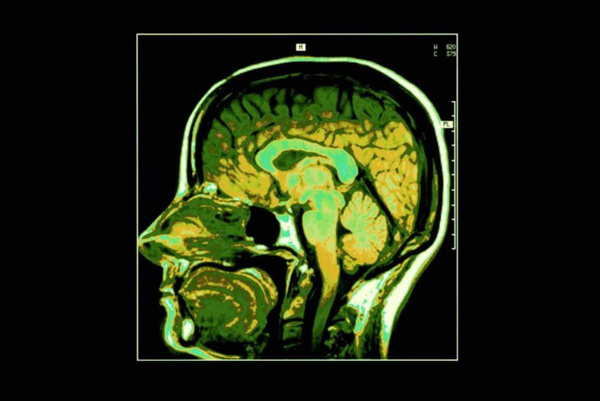 Can Obesity Affect Brain Health?