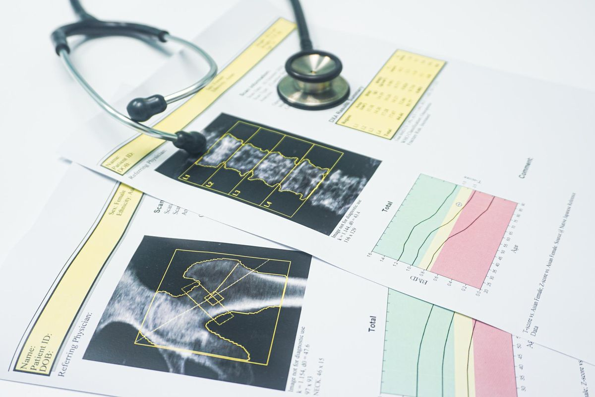 Close up stethoscope Put on a bone Density hip and spine report