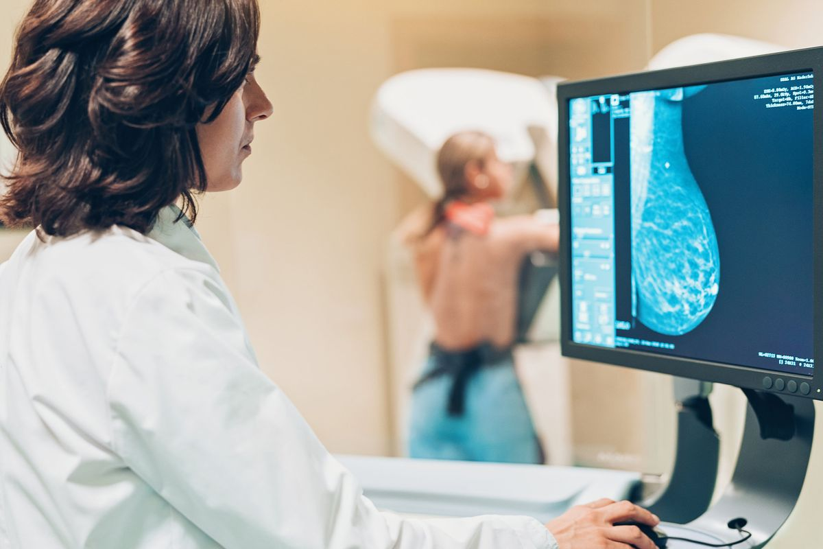 Do You Have Dense Breasts? Knowing Your Status Could Make a Difference in Your  Breast Cancer Screening