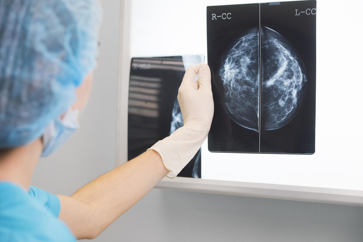 doctor holding a mammogram in front of x-ray illuminator