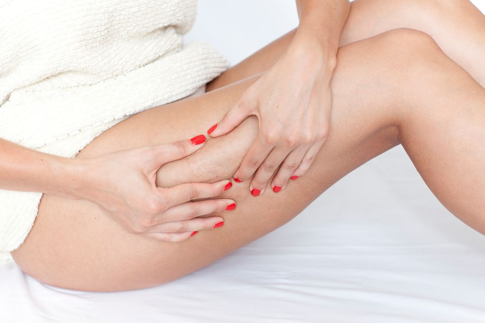 Can You Avoid Cellulite?