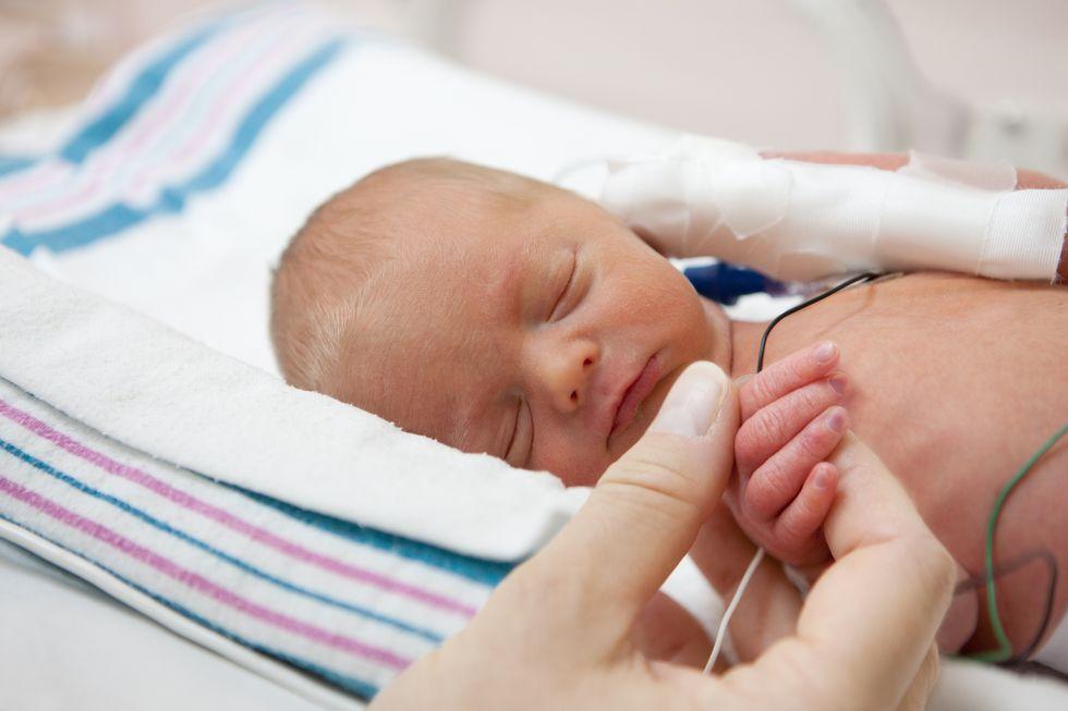 Brain Deficits in Preemies