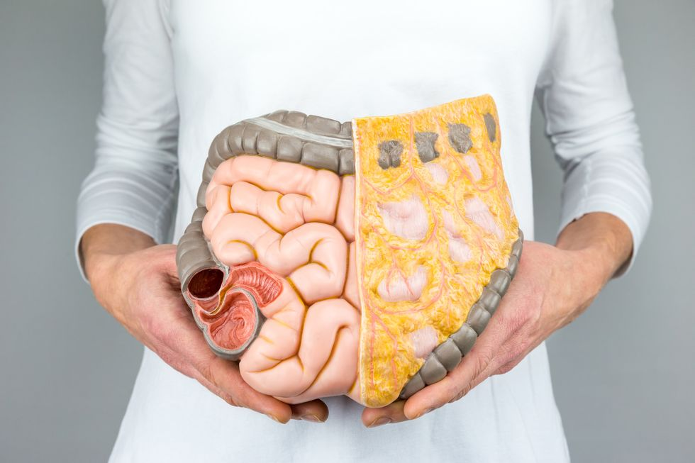 Colon Cancer on the Rise Among Gen Xers, Millennials