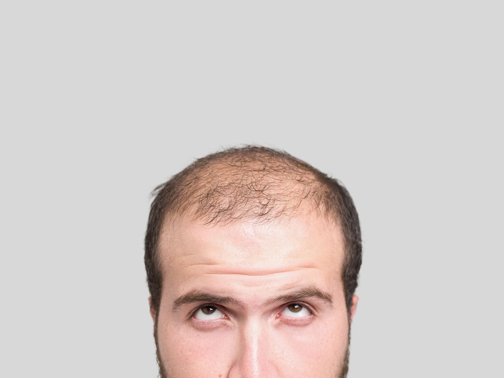Geneticists Get to the Roots of Hair Loss in Men