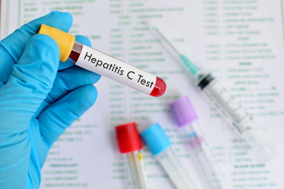 The Importance of Screening for Hepatitis C