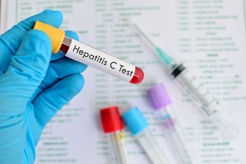 The Importance of Screening for Hepatitis C