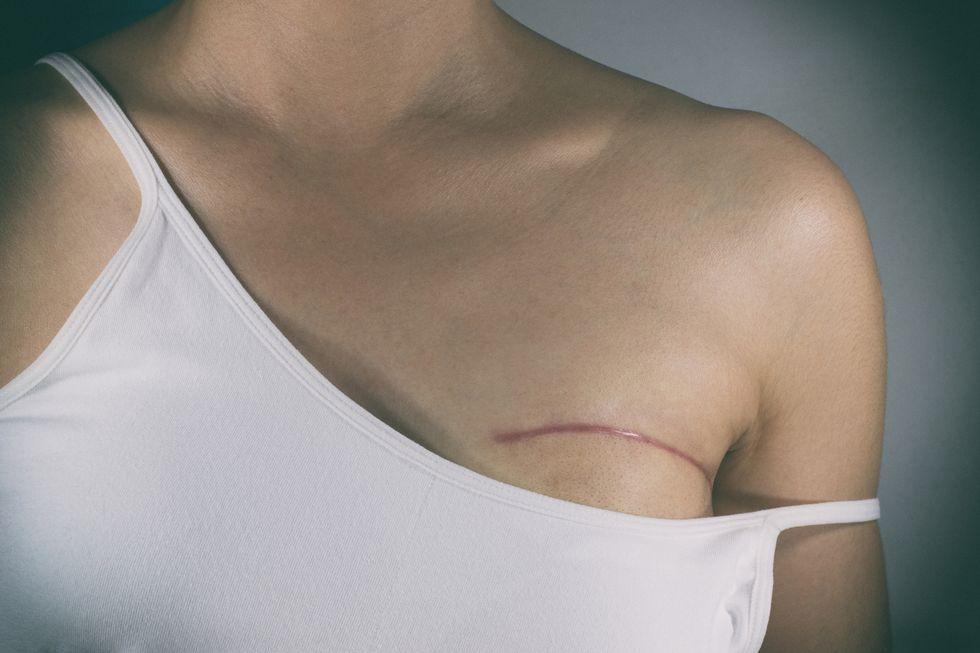 Unnecessary Mastectomies