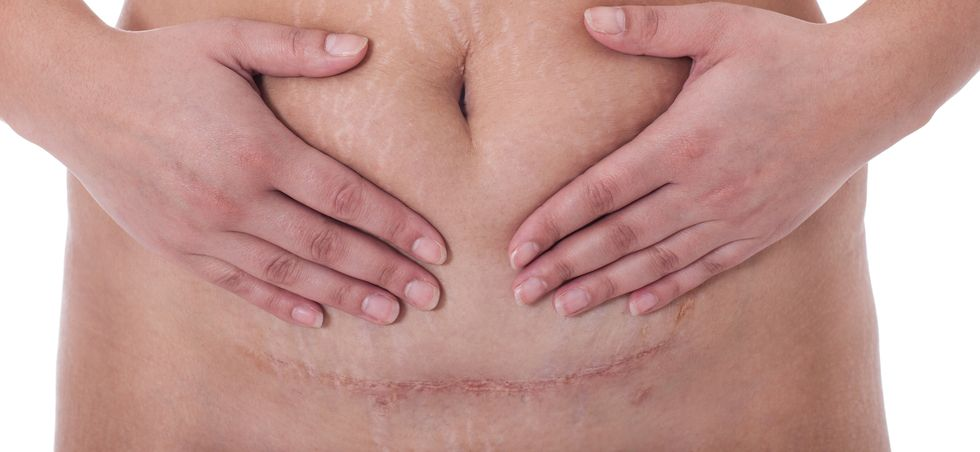Incision Length Linked to Pain After C-Section