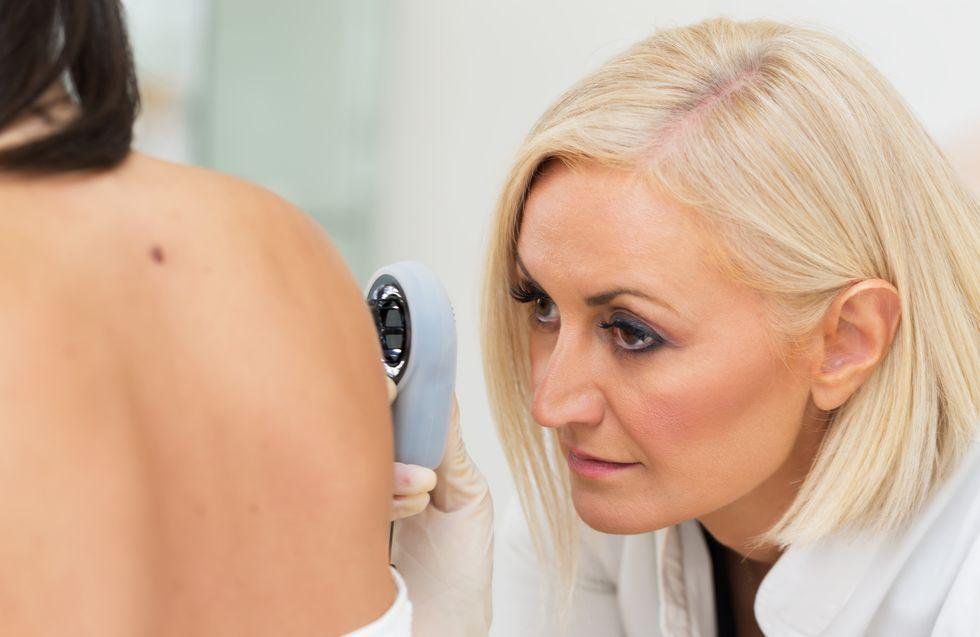 Skin Tags: An External Indicator of Your Internal Health