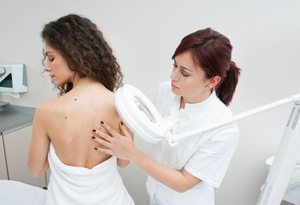 New Therapy May Help When Melanoma Spreads to Brain
