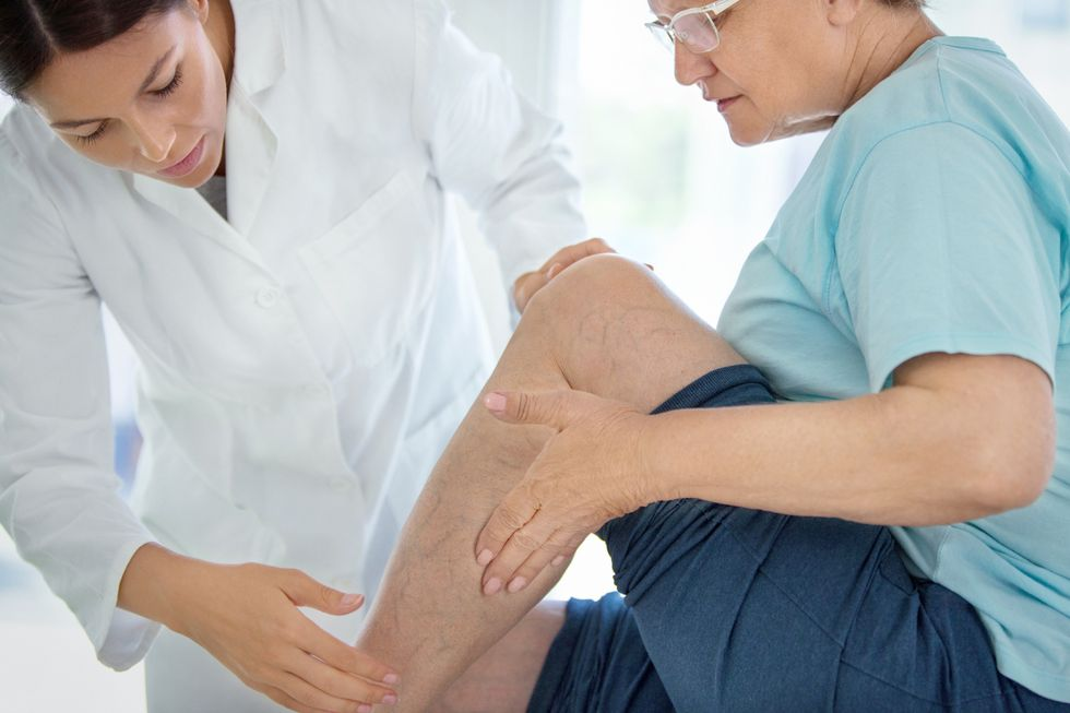 What Works Best Against Varicose Veins?