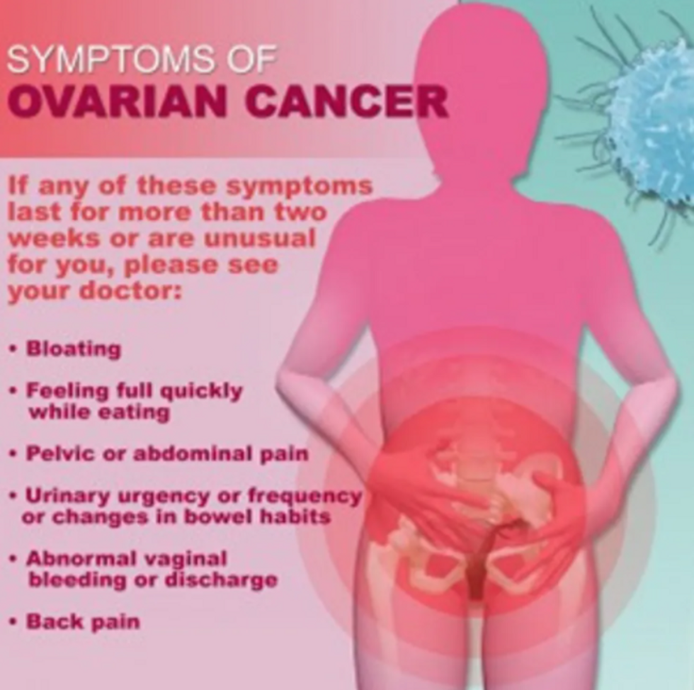 ovarian cancer abdominal bloating)