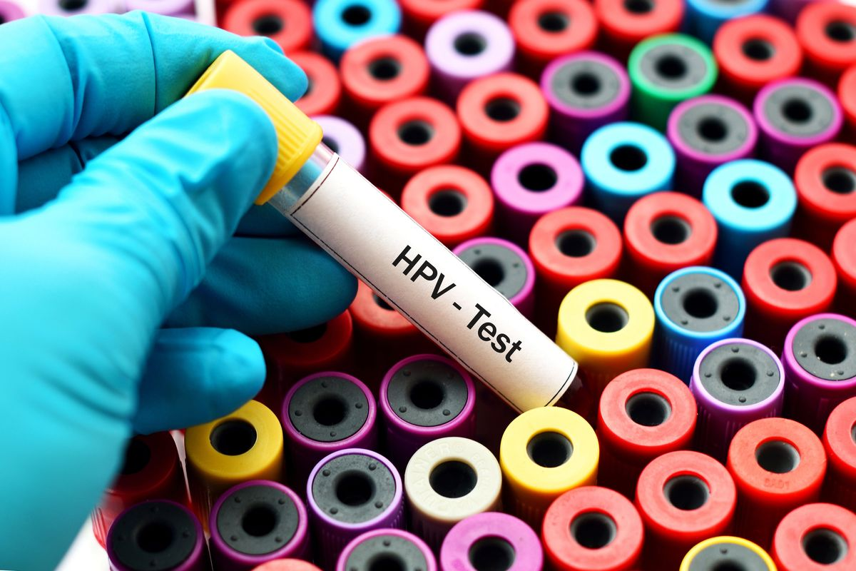 Is the HPV test Necessary?