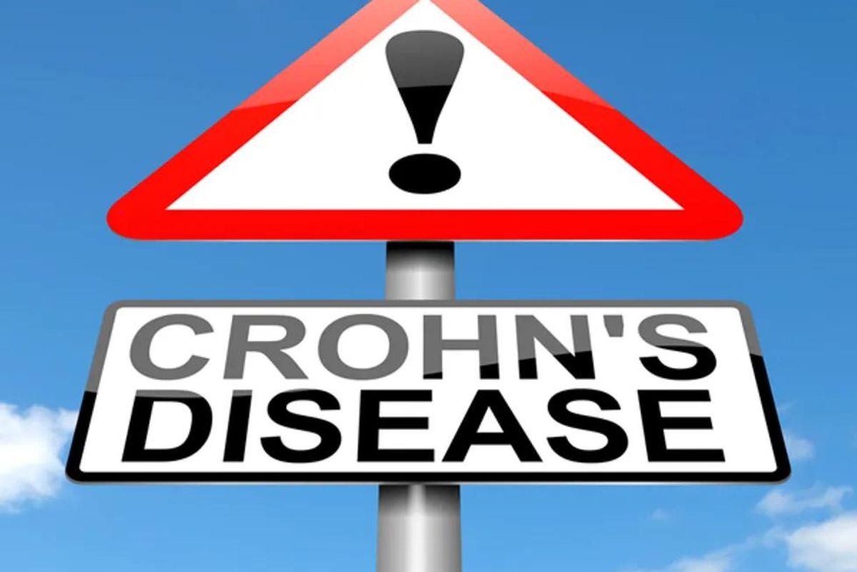 Good News for Crohn's Disease Patients
