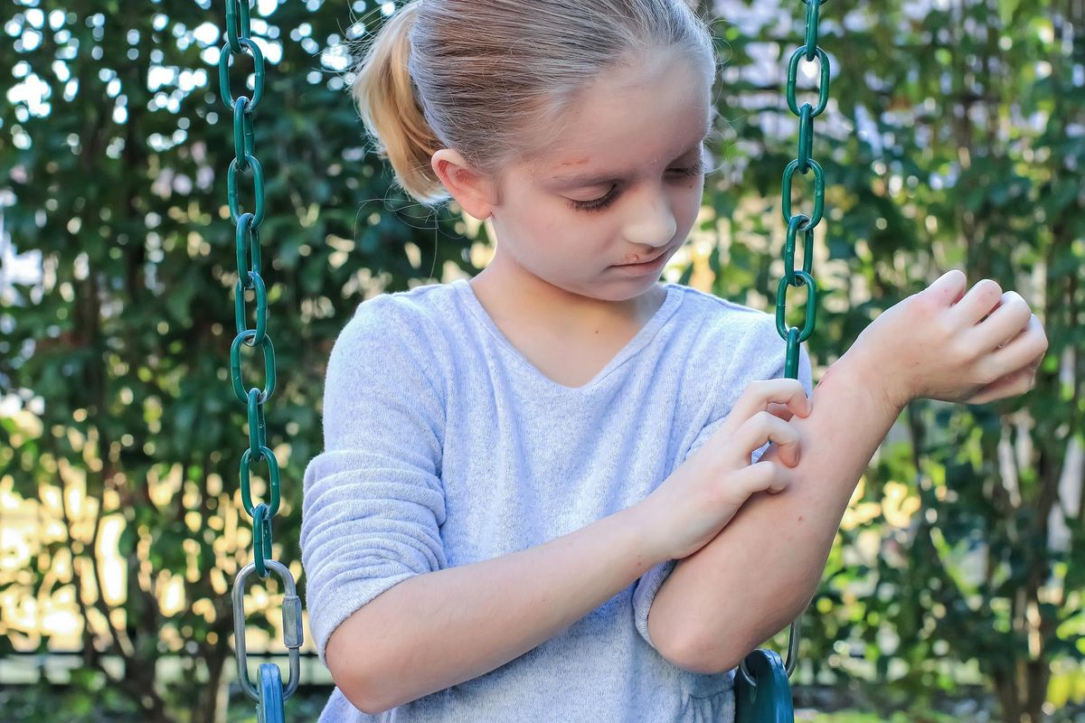 Girl With Eczema Scratching Her Arm