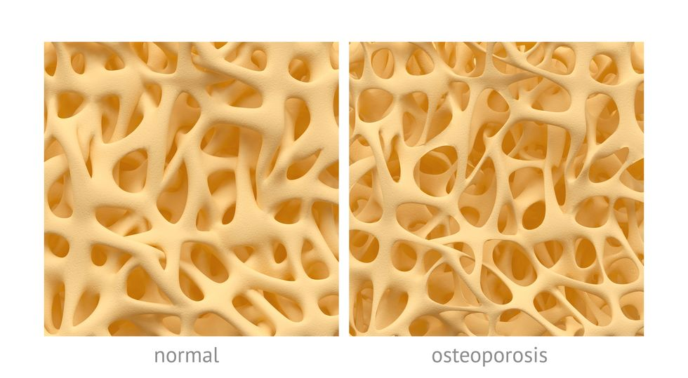 I Have Postmenopausal Osteoporosis: What I Wish I Had Known When I Was 40