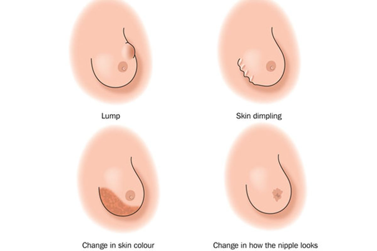 Finding a Lump or Other Change in Your Breasts