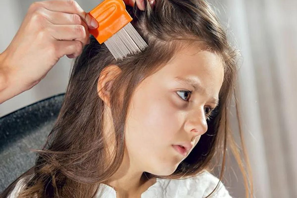 'Superlice' Resist Most Over-the-Counter Remedies