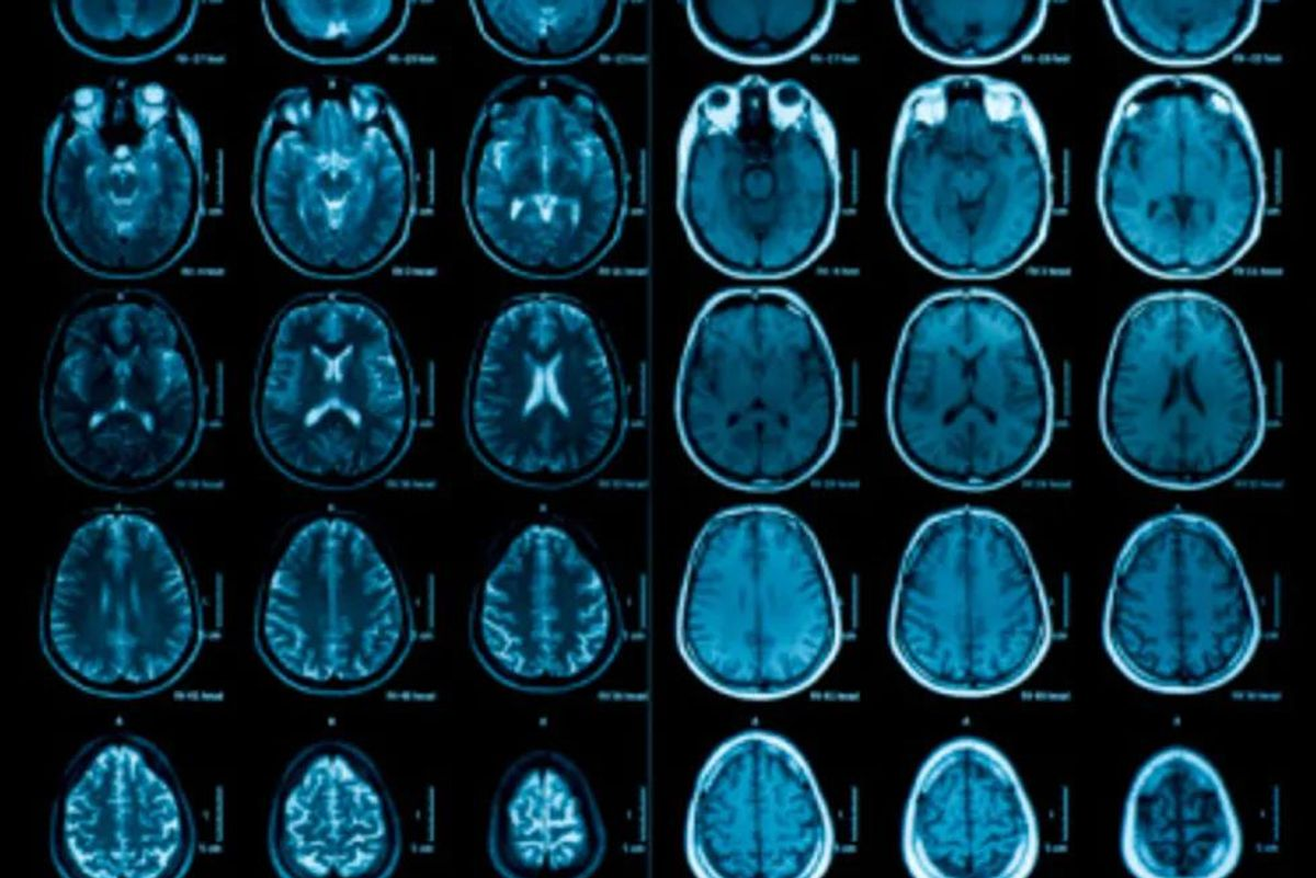images of the brain
