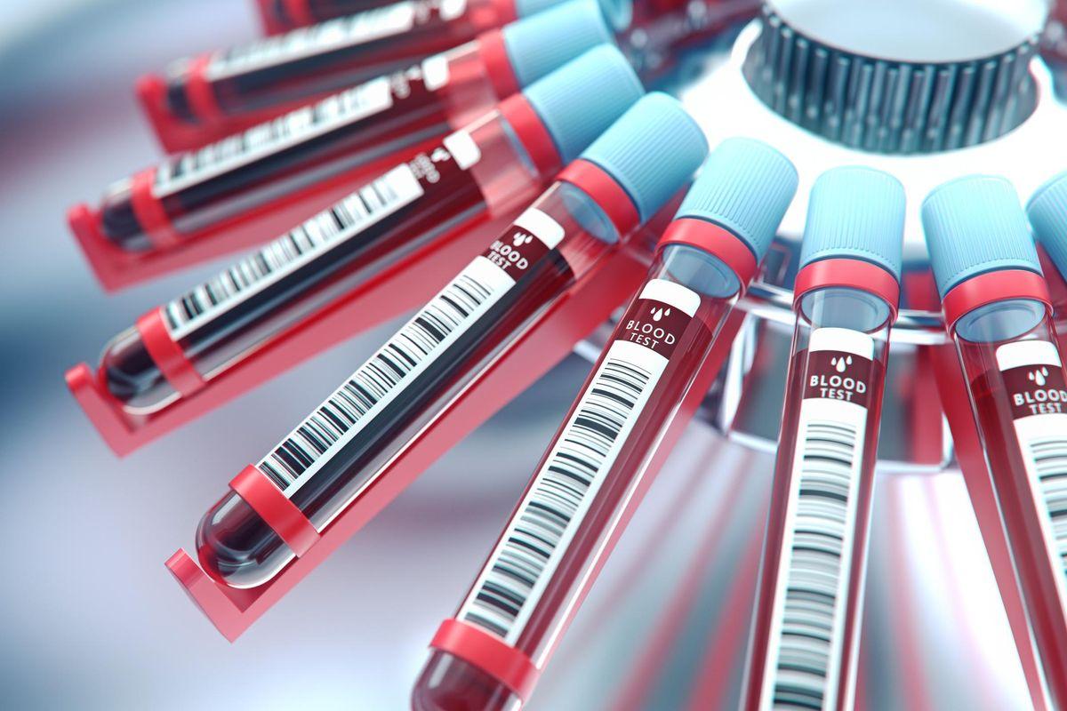 Lab equipment centrifuging blood