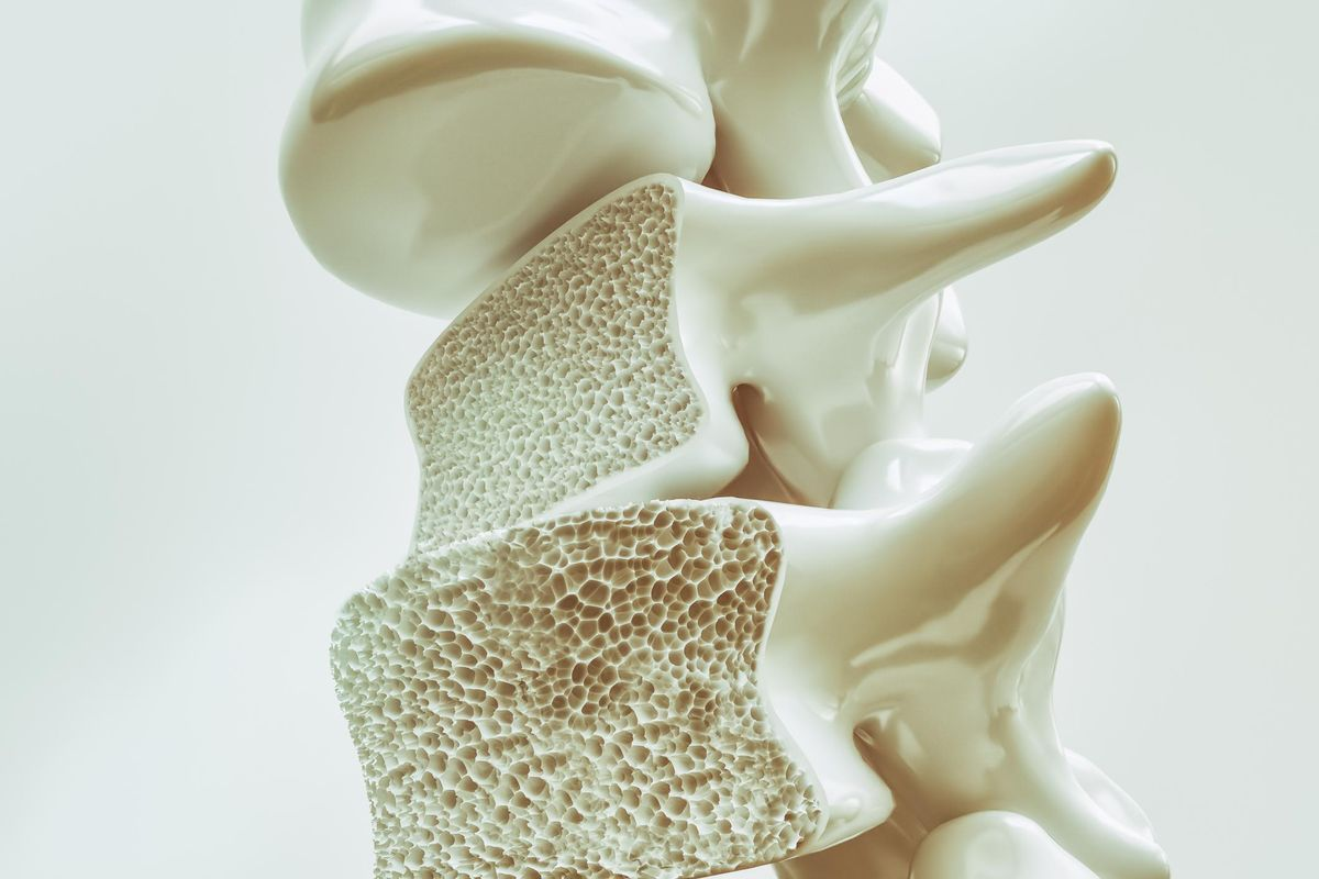 Osteoporosis on the spine