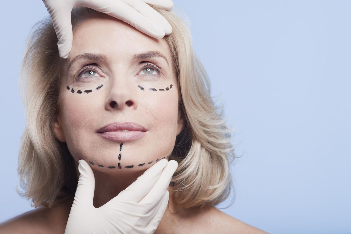 plastic surgeon holding woman's face with dotted lines