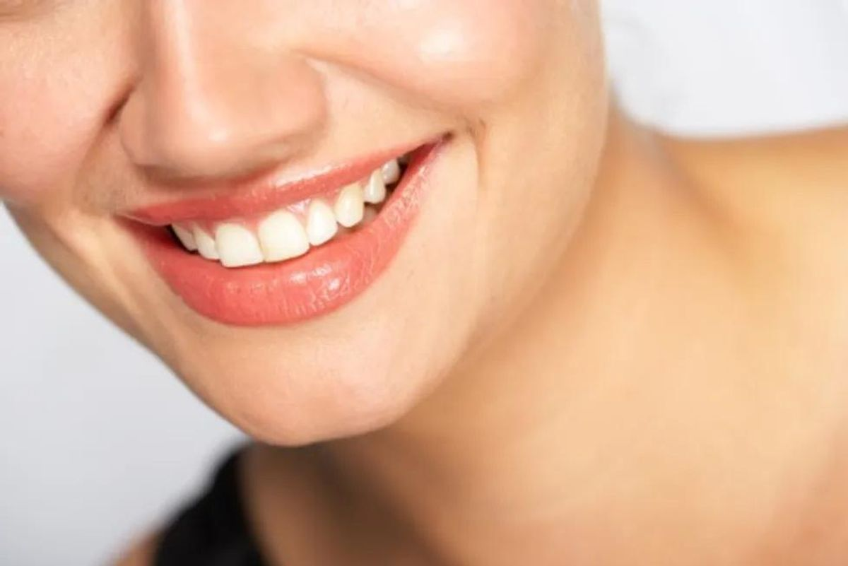 Teeth Whitening Best Bets: DIY vs. Professional Treatments