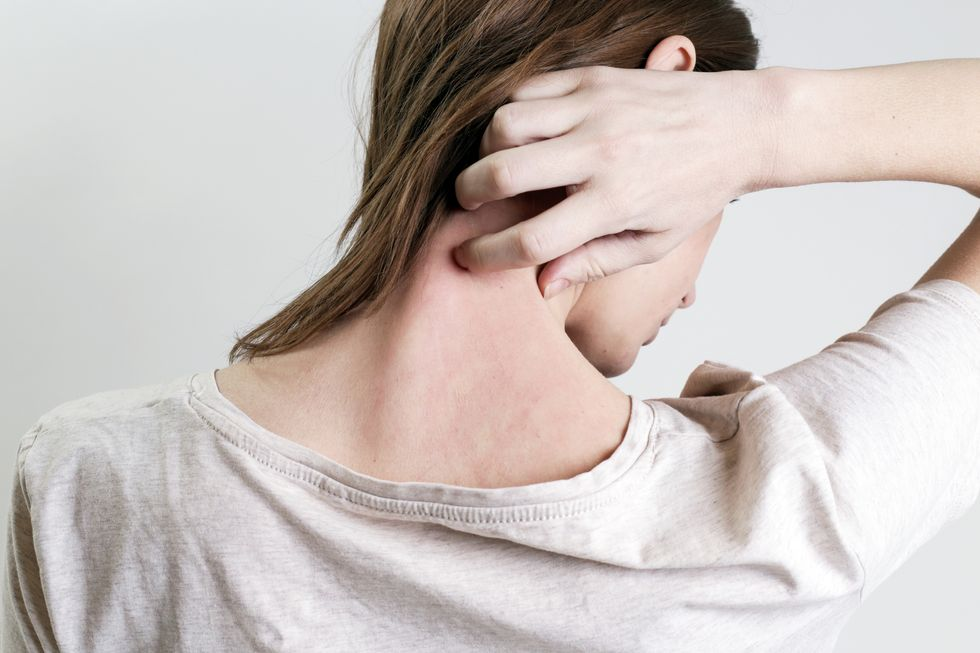 The Stigma of Psoriasis