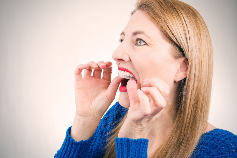 What to Do for Crooked Teeth