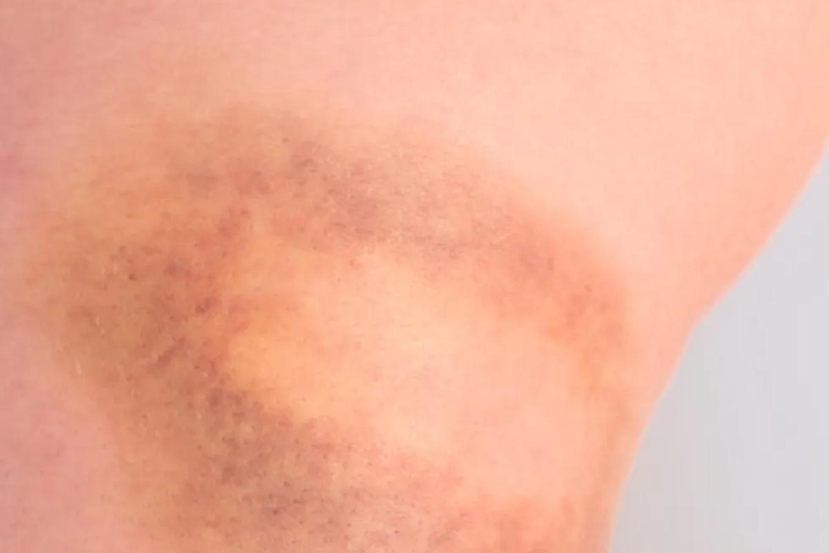 Willebrand disease (VWD)